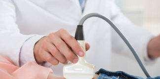 cerclajul colului uterin