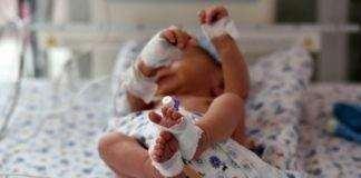 copil prematur